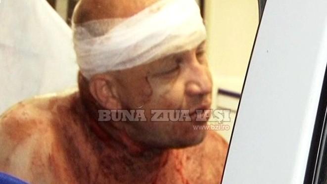 (video) Bătaie sângeroasă între doi moldoveni la Iași
