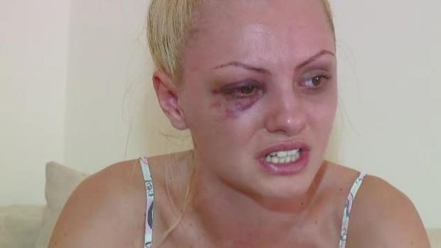 După ce a fost bătută cu bestialitate de fostul ei manager și iubit, Alexandra Stan o perioada nu va mai da concerte. PC: churry-burry.ro