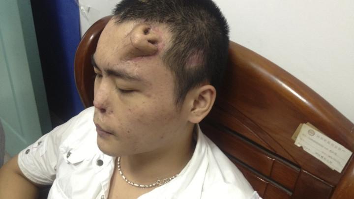 Pe fruntea lui Xiaolian a crescut un nas