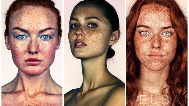 (foto) Proiect fotografic inedit despre frumusețea oamenilor cu pistrui
