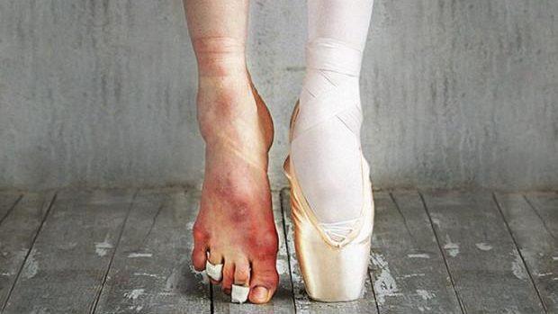 (foto) Care este costul dureros pe care îl plătesc balerinele pentru aplauzele de la spectacole