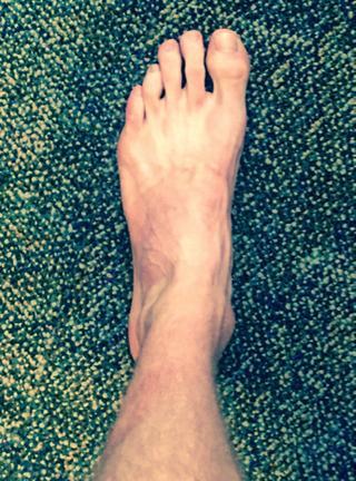 foto picior