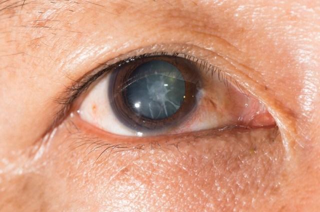 cataractă