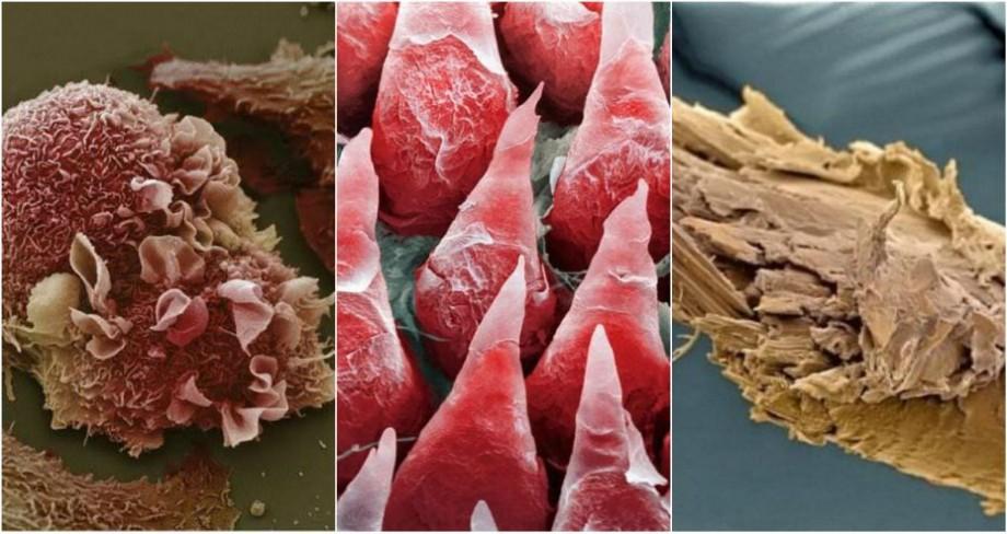 (foto) Corpul uman sub microscop. Cum arată limba, dinții sau unghiile mărite de câteva mii de ori
